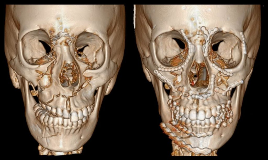 bone fractures in face